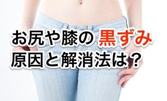膝やお尻の黒ずみの原因を教える。予防&治すには。