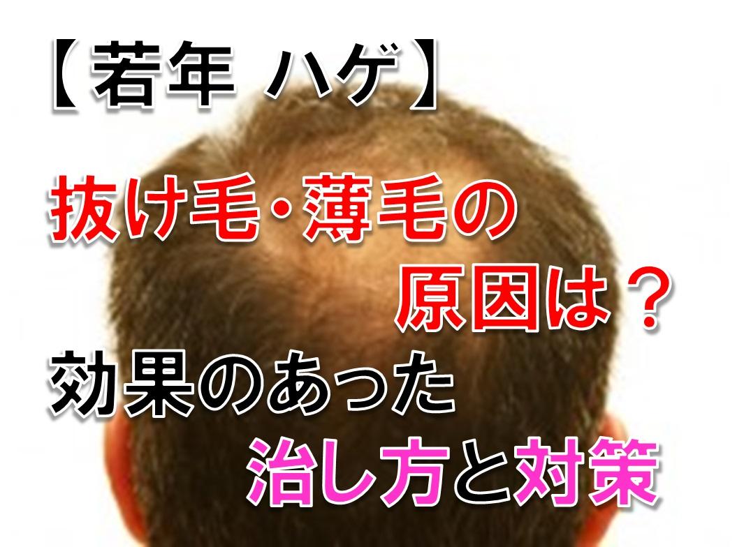 若年のハゲ・抜け毛・薄毛の原因。自分に効果のあった治し方と対策を紹介する。
